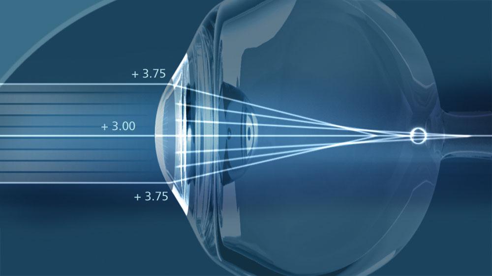 Почему ребёнок рождается с плохим зрением
